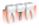 Animation of mini implant supported dental crown