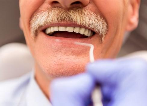 Missing Teeth Fort Worth Tx Dental Implants Dentures